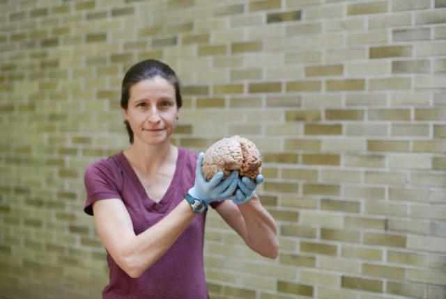 Jen Mozolic holding a brain